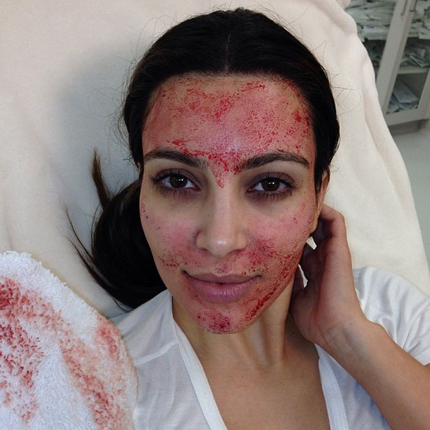 Kim Kardashian tries a vampire facial on Keeping Up With The ...