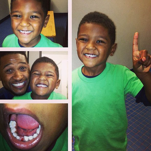 Usher's son, Usher Raymond V, loses his first tooth - 19 March