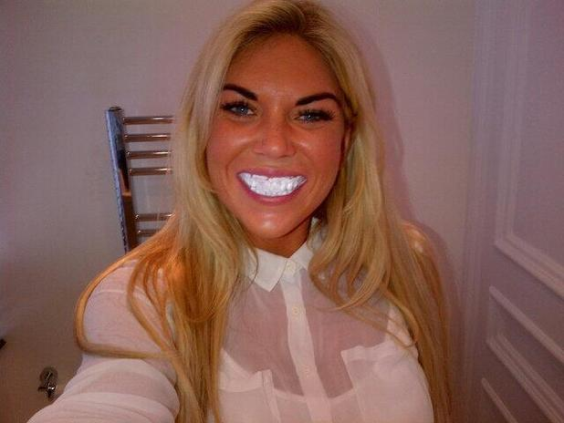 TOWIE's Frankie Essex gets teeth whitening - 21 June 2013