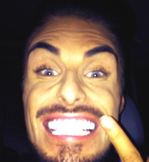 Rylan Clark shares picture of his veneers on Twitter on 14 June 2013
