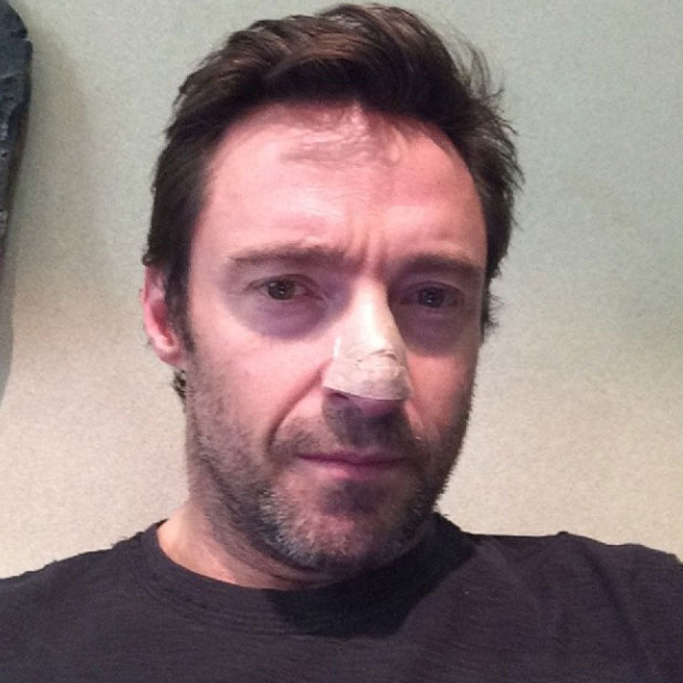 Hugh Jackman reveals he has been treated for skin cancer, 21 November 2013
