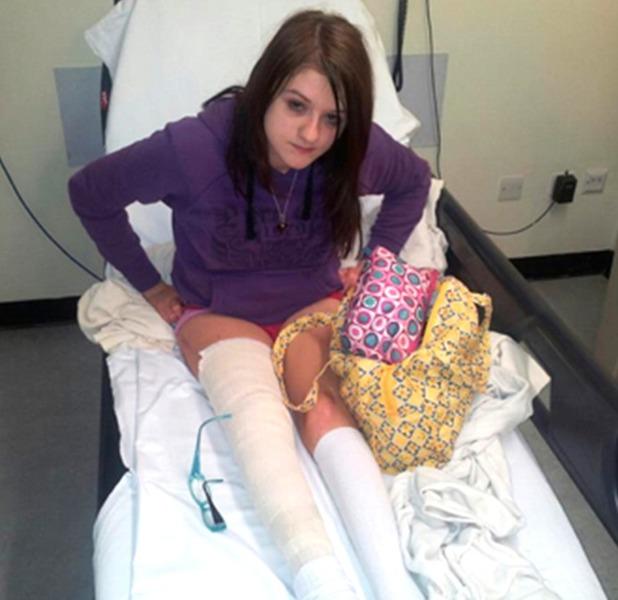 Lorna has broken over 80 bones