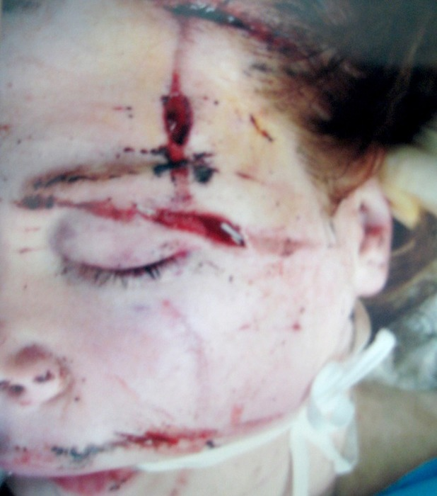 Hannah suffered horrific injuries in Iraq