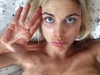 Ashley James: fake tan fail with white handprints across her chest