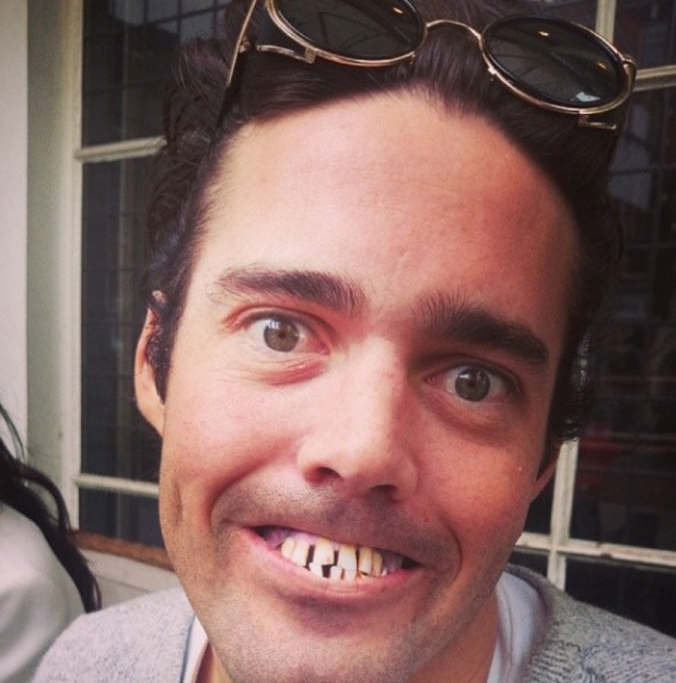 Made In Chelsea's Spencer Matthews shows off fake teeth (2 April).