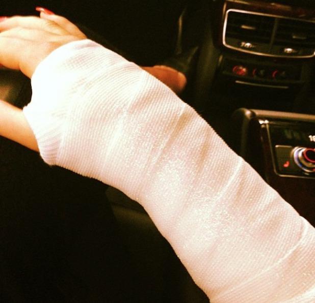 Kimberley Walsh's glitter plaster cast, due to broken wrist, 26 March 2014