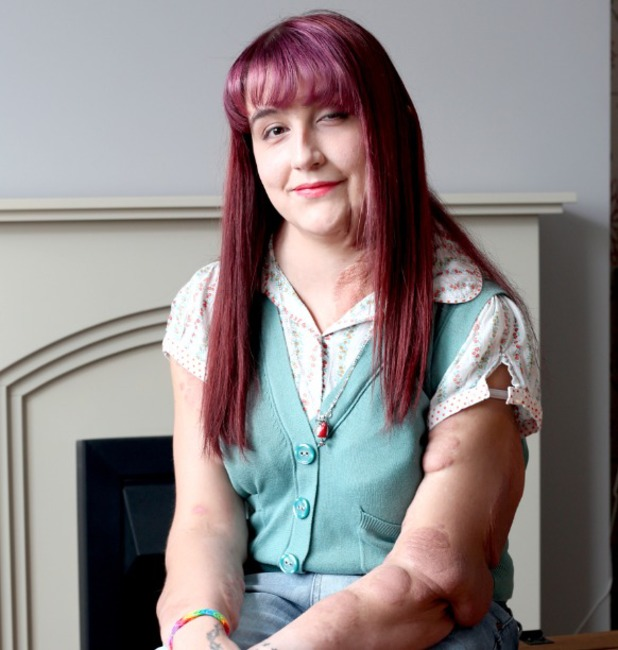 Katie Newell, Tumours are taking over my body