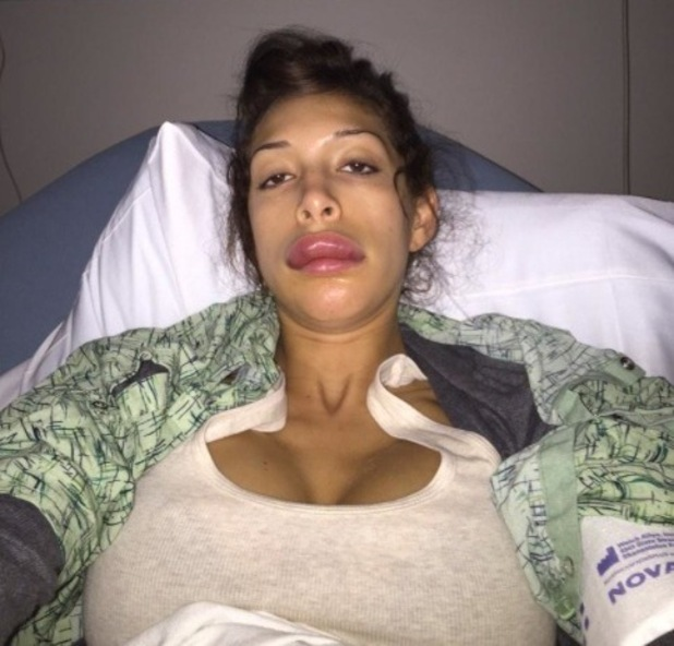 Farrah Abraham shows off her botched lip job - 7 Jan 2015