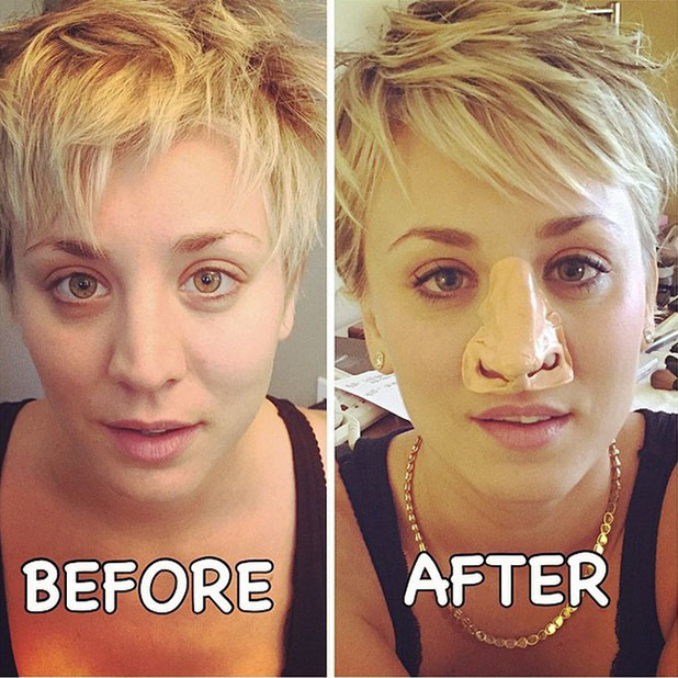 Kaley Cuoco shows off her nose after undergoing sinus surgery, 6 January 2015