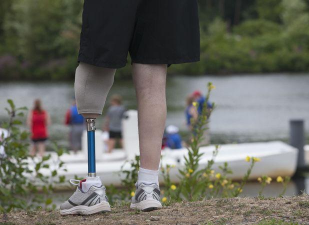 Bethany Wick sold ex-boyfriend's fake leg online