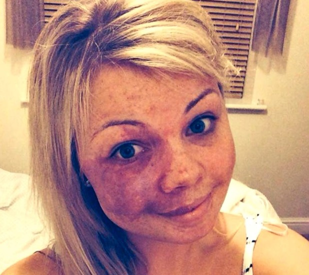 Amy Elsegood, My no make-up selfie set me free