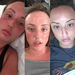 Charlotte Crosby reveals extent of sunburn on girls' holiday, Instagram 25 March