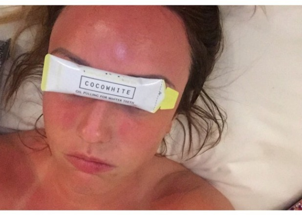 Charlotte Crosby shows off some painful-looking sunburn while promoting Cocowhite, 24 March 2015