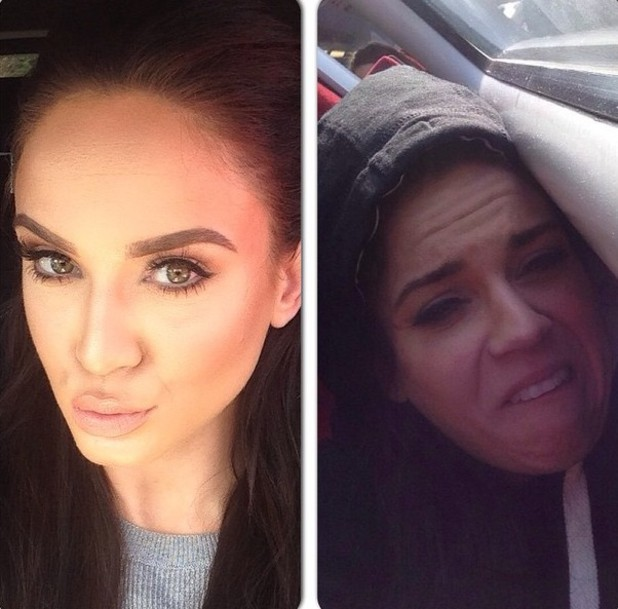 Vicky Pattison before and after hangover selfie