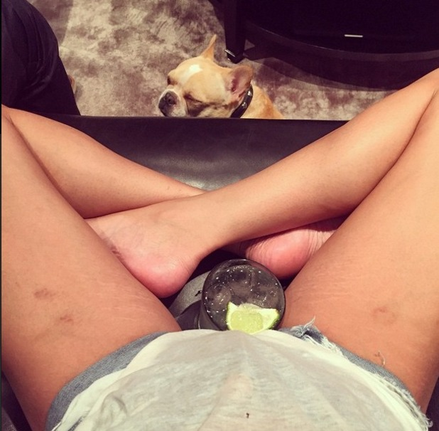 Chrissy Teigen shows off her bruises from bumping kitchen drawer handles! Plus stretch marks on her legs, 12 April 2015