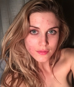 Ashley James bravely shows off her acne, 25 April 2015
