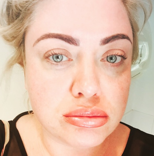 TOWIE's Gemma Collins gets her lips done 21 april