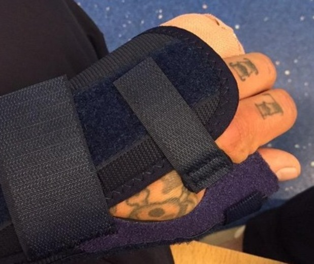 "Kirk Norcross posts injury to twitter ""Woohoo! Looks like I don't need an op but I do get to wear this funky thing until my next appointment on Friday"" 29th April 2015"