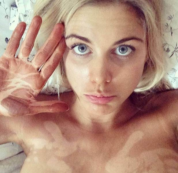 Ashley James shows off fake tan fail on Instagram in March 2014