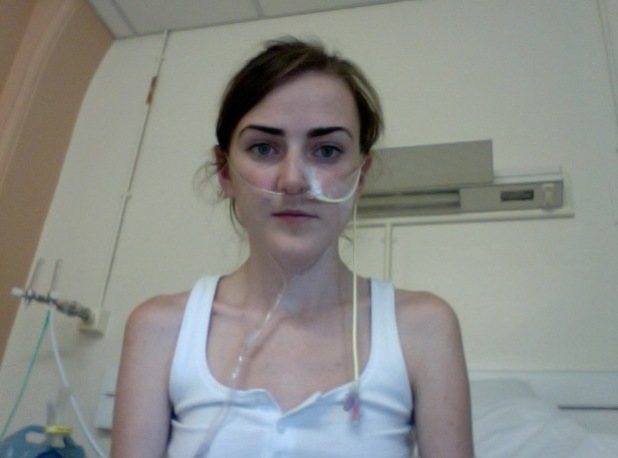 Amanda Chalmers before her double lung transplant