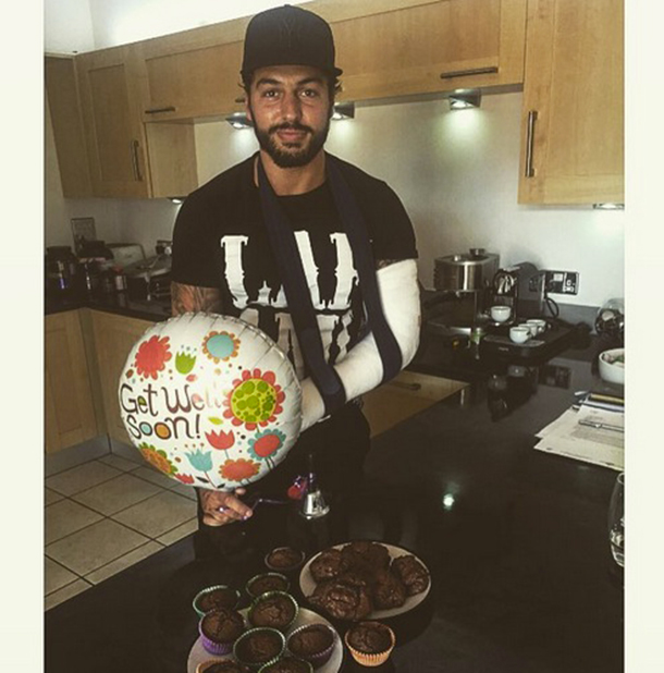 Mario Falcone shows his cast after breaking arm July 2015