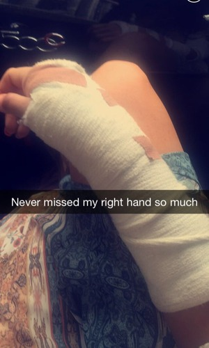 TOWIE's Jessica Wright has hand in bandage after breaking wrist - 28 July 2015.