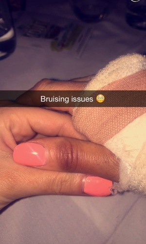 TOWIE's Jessica Wright reveals she has broken her wrist - 28 July 2015.