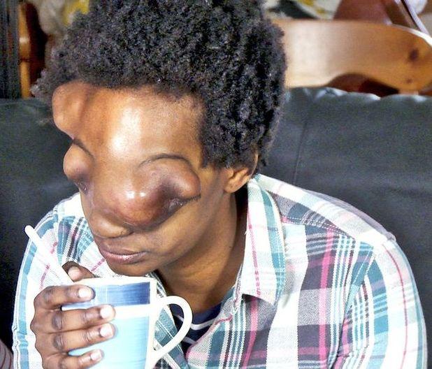 Tambudzai Makinzi before surgery