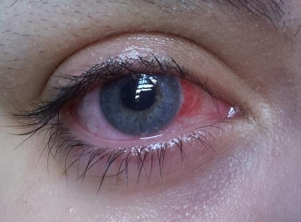 Sarah Richards eye