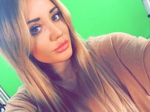 Geordie Shore's Charlotte Crosby finally shows off nose surgery results