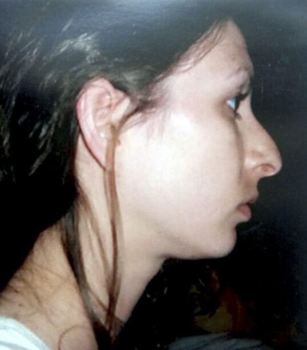 Vanessa Brooks - before any surgery