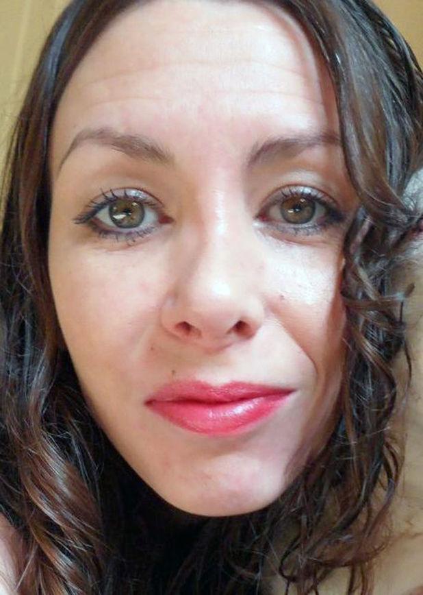 Vanessa Brooks - after operation 2