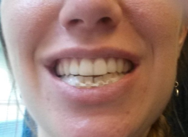Sarah's teeth without the brace