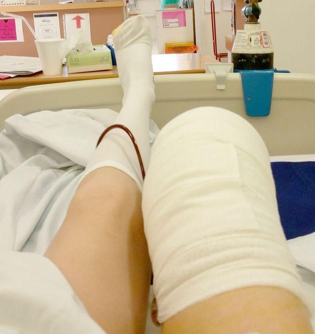 Natalie Turner after having her leg amputated